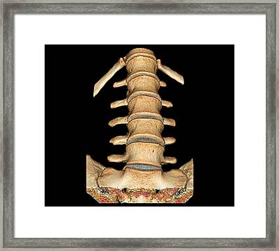 Normal Spine Framed Print by Zephyr