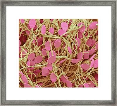 Sperm Framed Print by Steve Gschmeissner