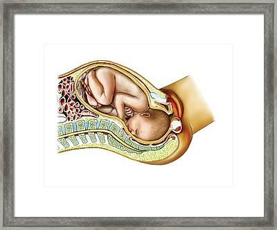 Childbirth Framed Print