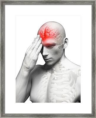 Headache Framed Print by Sebastian Kaulitzki