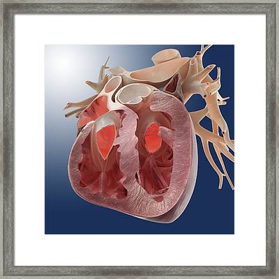 Heart, Artwork Framed Print by Science Photo Library