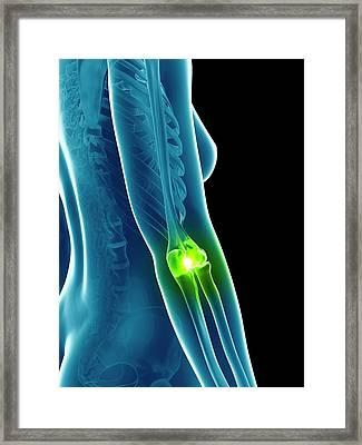 Human Elbow Joint Framed Print by Sebastian Kaulitzki