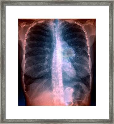Lung Cancer Framed Print by Zephyr/science Photo Library
