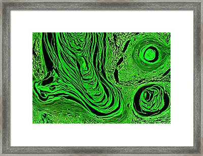 Oesophageal Cancer Framed Print by Antonio Romero