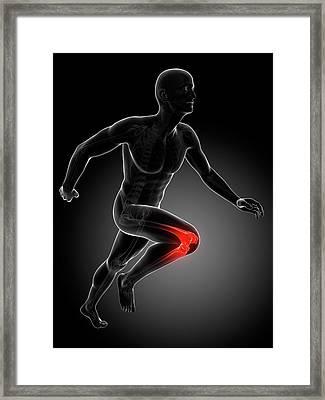 Runner's Knee Joint Framed Print