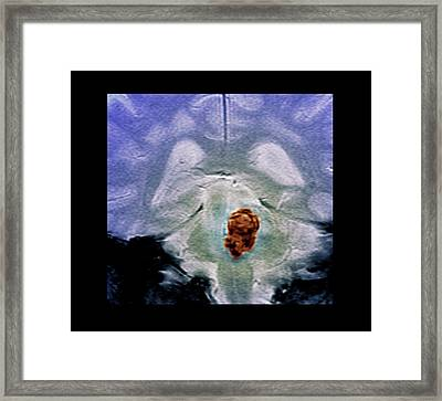 Brain Haemorrhage Framed Print by Zephyr
