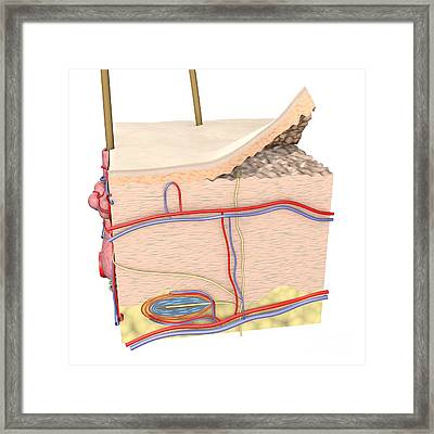 Cross-section Of The Skin Framed Print by Medical Images, Universal Images Group