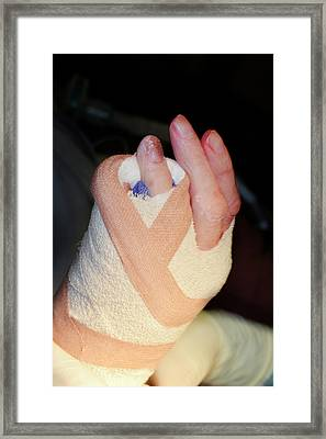 Dupuytren's Contracture Surgery Framed Print by Dr P. Marazzi/science Photo Library