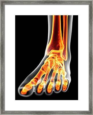 Human Foot Bones Framed Print