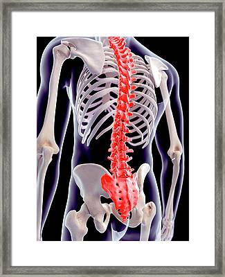 Human Spinal Pain Framed Print by Sebastian Kaulitzki/science Photo Library