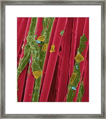 Used Wax Dental Floss Framed Print by Dennis Kunkel Microscopy/science Photo Library