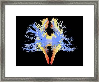 White Matter Fibres Of The Human Brain Framed Print