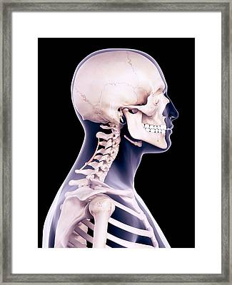 Neck Muscles Framed Print by Sebastian Kaulitzki/science Photo Library
