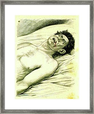 A Subject Suffering From Epilepsy Framed Print by Universal History Archive/uig