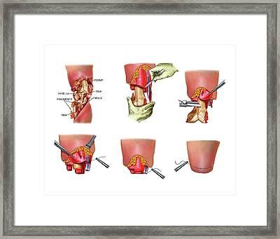 Above-knee Leg Amputation Framed Print