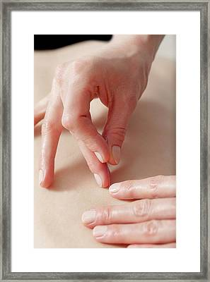 Acupuncture Treatment Framed Print by Thomas Fredberg