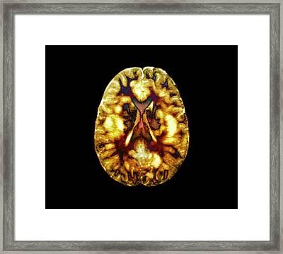 Acute Disseminated Encephalomyelitis Framed Print by Zephyr
