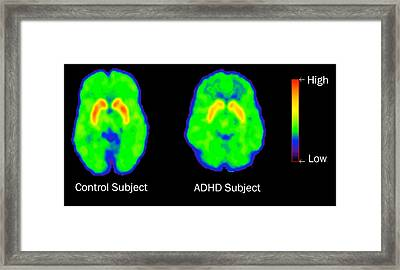 Adhd Levels Of Dopamine, Pet Framed Print by Science Source