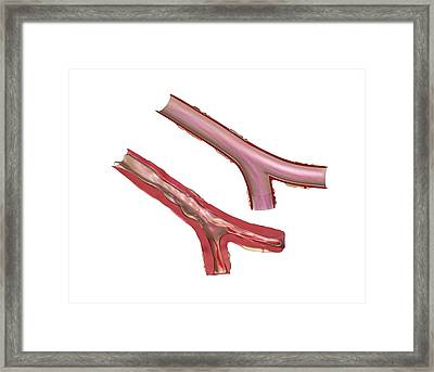 Airways In Cystic Fibrosis Framed Print