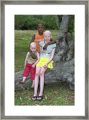 Albino Siblings With Their Black Brother Framed Print
