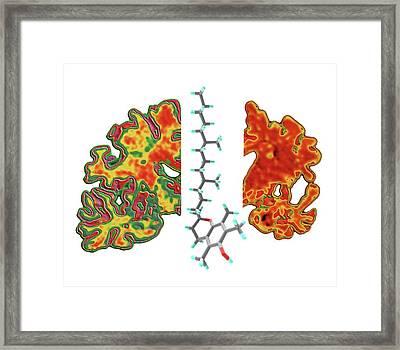 Alzheimer's Brain And Vitamin E Molecule Framed Print