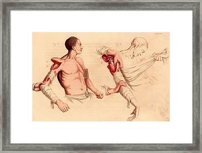 Amputation Of The Arm At The Shoulder Framed Print