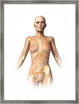 Anatomy Of Female Body With Bone Framed Print by Leonello Calvetti