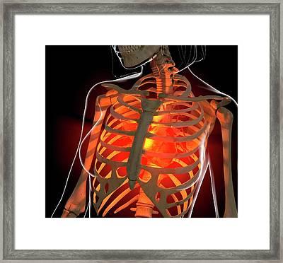 Angina, Conceptual Artwork Framed Print by Roger Harris