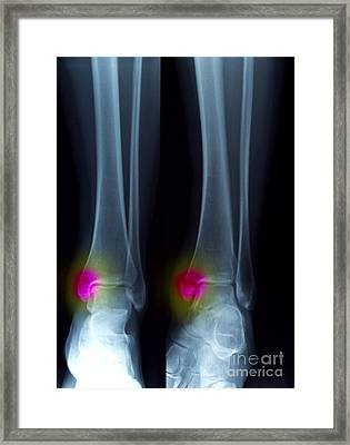 Ankle Fracture Framed Print by Scott Camazine