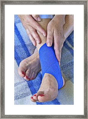 Ankle Injury Framed Print by Science Photo Library