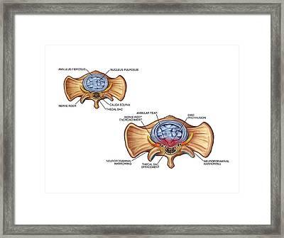 Annular Tear Of Intervertebral Disc Framed Print by John T. Alesi