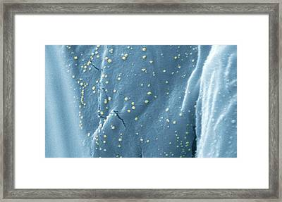 Anti-microbial Silver On Cotton Framed Print