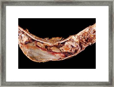 Aortic Aneurism Framed Print by Pr. R. Abelanet - Cnri