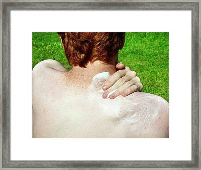 Applying Suntan Lotion To Pale Skin Framed Print by Cordelia Molloy