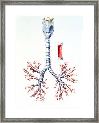 Artwork Of Trachea And Bronchi Of The Human Lungs Framed Print by Bo Veisland, Mi&i/science Photo Library