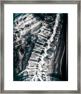As If I Have No Skin Framed Print by Bob Orsillo