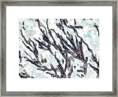 Aspergillus Fumigatus Framed Print by Ralph C. Eagle
