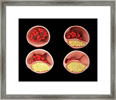Atherosclerosis Framed Print by Juan Gaertner