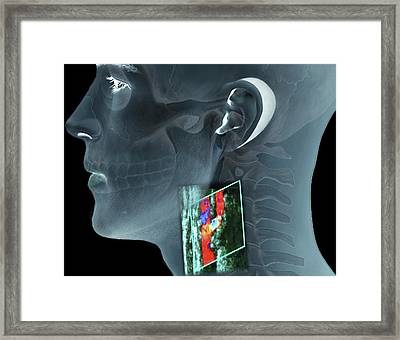 Atherosclerosis Of The Carotid Artery Framed Print