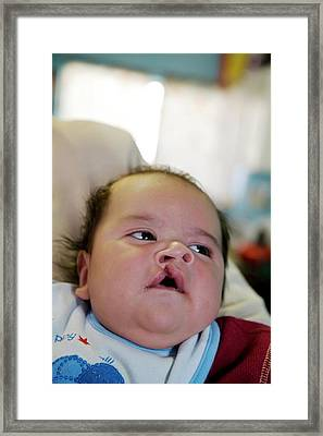 Baby With A Cleft Lip Framed Print