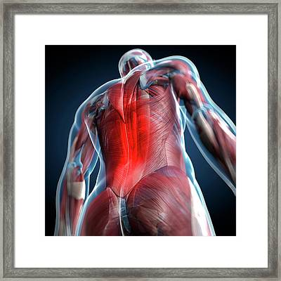 Back Pain, Conceptual Artwork Framed Print by Science Photo Library - Sciepro