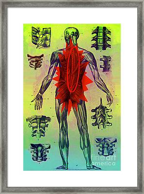 Back Problems Framed Print