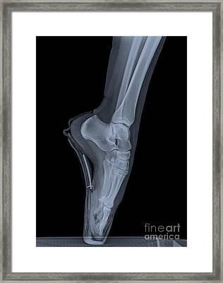 Ballet Dancer X-ray 2 Framed Print by Guy Viner