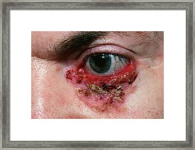 Basal Cell Carcinoma Framed Print by Microscape