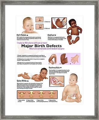 Birth Defects In Babies Framed Print by Gwen Shockey