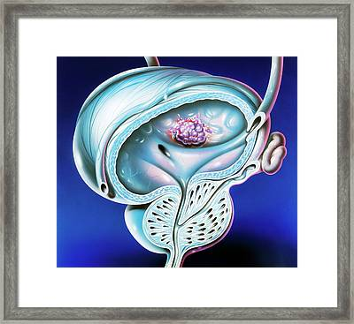 Bladder Tumour Framed Print by John Bavosi