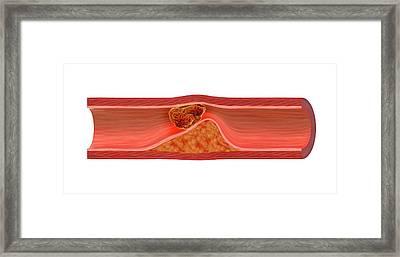 Blocked Artery Framed Print by Claus Lunau