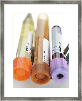 Blood And Other Samples For Testing Framed Print