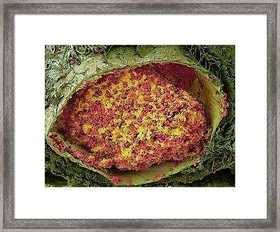 Blood Clot In The Lung Framed Print by Microscopy Core Facility, Vib Gent