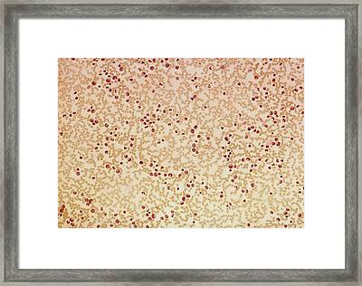 Blood Film Showing Leukaemia Framed Print by Gene Cox/science Photo Library